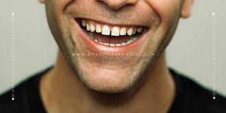 دیاستما یا فاصله بین دندان ها