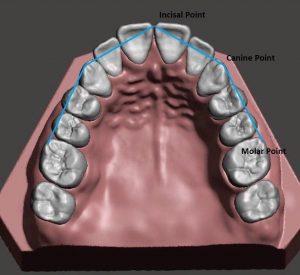 آرکهای دندانی