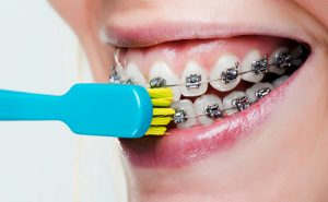 مسواک زدن سطح خارجی دندان