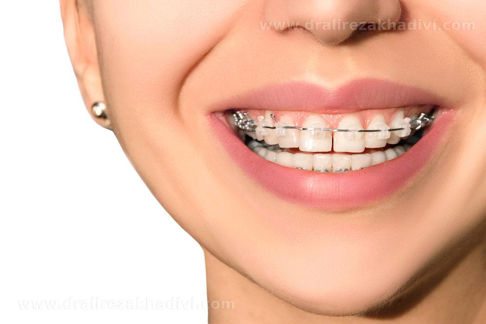 بهترین مزایا و فواید ارتودنسی دندان