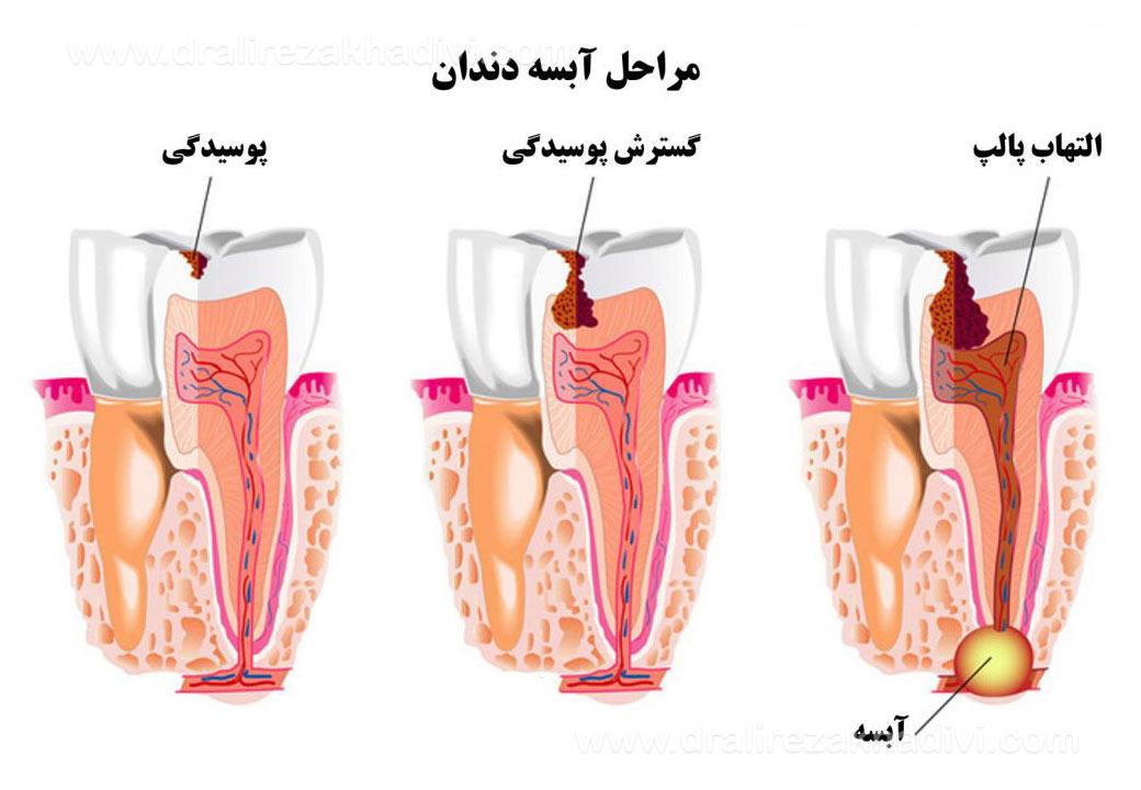آبسه دندان