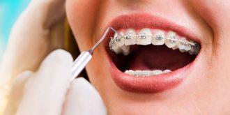 مراحل ارتودنسی دندان