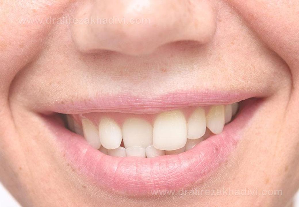 ارتودنسی یک دندان