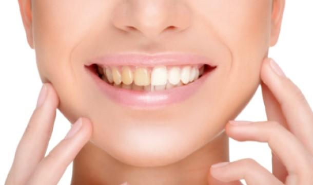 زرد شدن دندان ها1