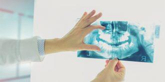 اشعه ایکس در ارتودنسی