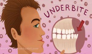 آندربایت دندان