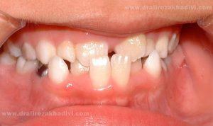 کراس بایت دندان