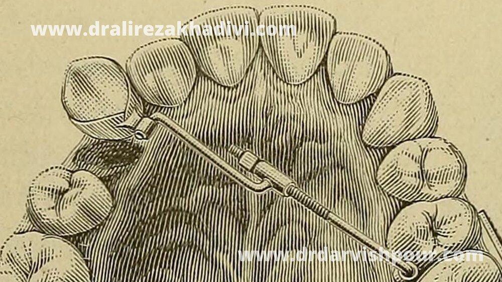 تاریخچه ارتودنسی دندان