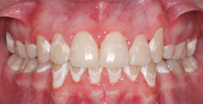 پوسیدگی دندان در ارتودنسی