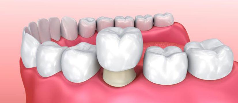 ارتودنسی دندان روکش شده