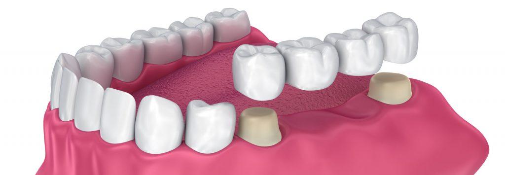پل و بریج دندانپزشکی با روکش دندان برای بستن فاصله بین دندان ها