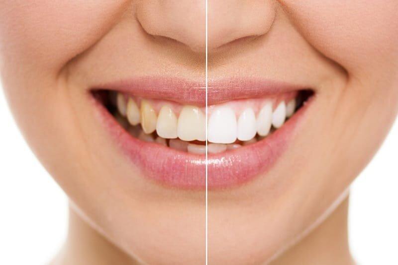 بلیچیینگ دندان