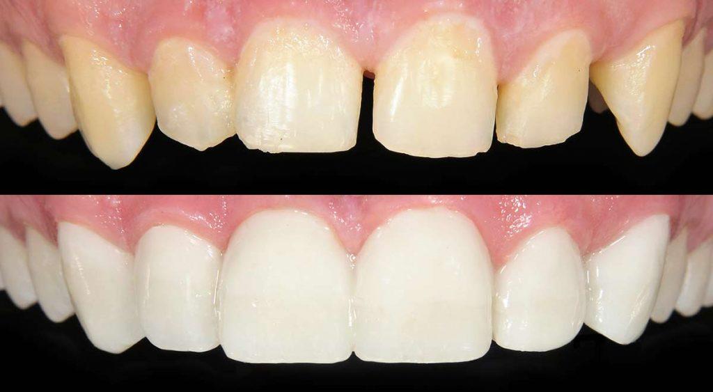 باندینگ دندان برای بستن فاصله بین دندان ها