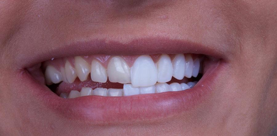 لمینت دندان برای بستن فاصله بین دندان ها